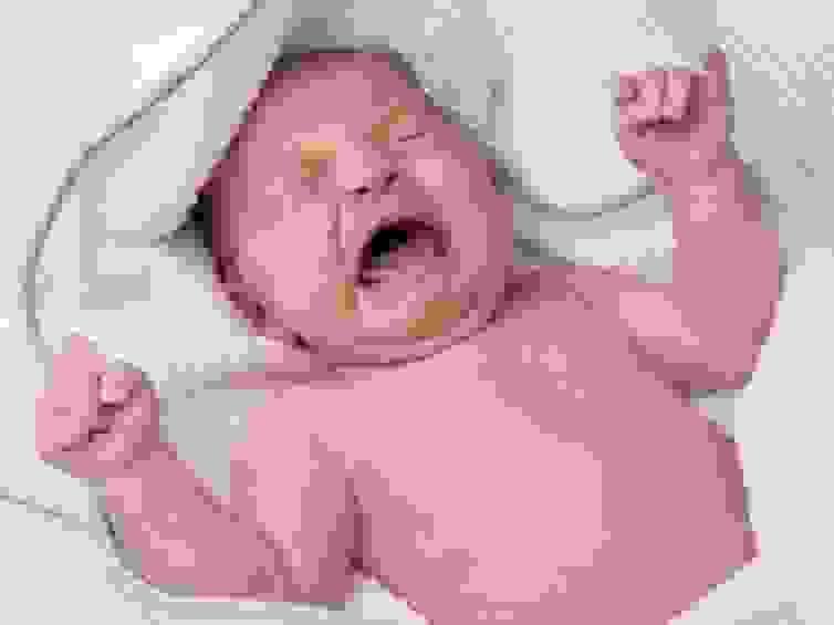 Nguyên nhân bé ngủ hay vặn mình, giật mình và ngủ không sâu giấc 1